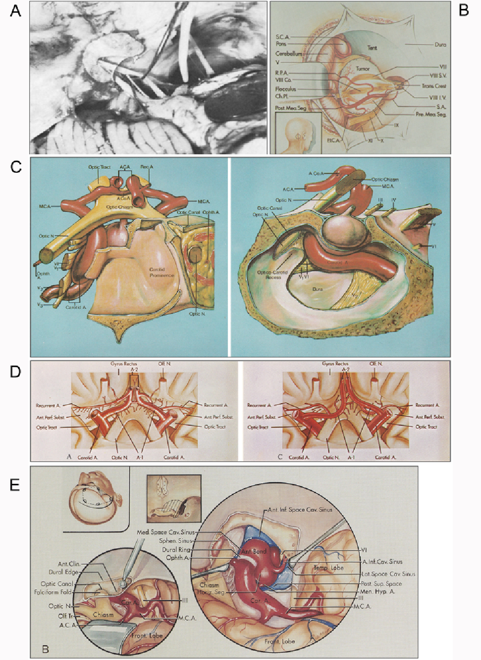Figure 3 From The Microneurosurgical Anatomy Legacy Of Albert L