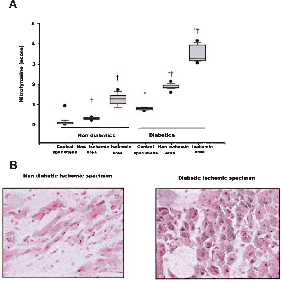 FIG. 4. A: Nitrotyrosine score in specimens from patients with and without diabetes. B: Representative nitrotyrosine immunostaining from ischemic ventricular biopsy specimens. *P < 0.001 vs. nondiabetic patients; †P < 0.001 vs. control specimens.