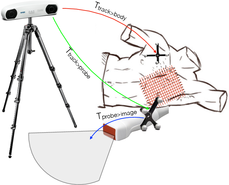 Figure 4 for Straight to the point: reinforcement learning for user guidance in ultrasound