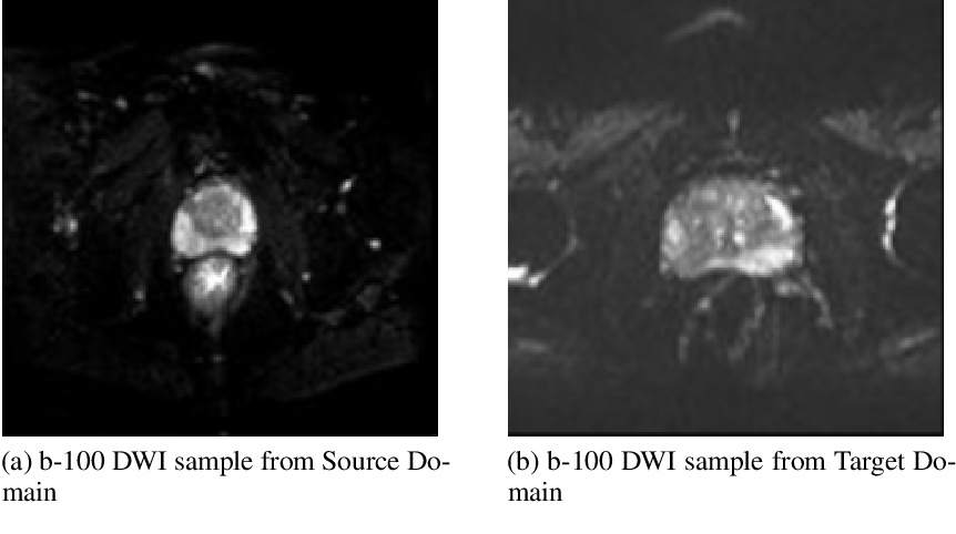 Figure 1 for A Transfer Learning Approach for Automated Segmentation of Prostate Whole Gland and Transition Zone in Diffusion Weighted MRI