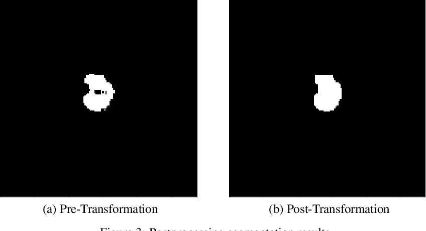 Figure 4 for A Transfer Learning Approach for Automated Segmentation of Prostate Whole Gland and Transition Zone in Diffusion Weighted MRI