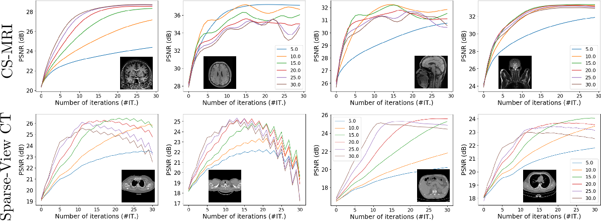 Figure 1 for TFPnP: Tuning-free Plug-and-Play Proximal Algorithm with Applications to Inverse Imaging Problems
