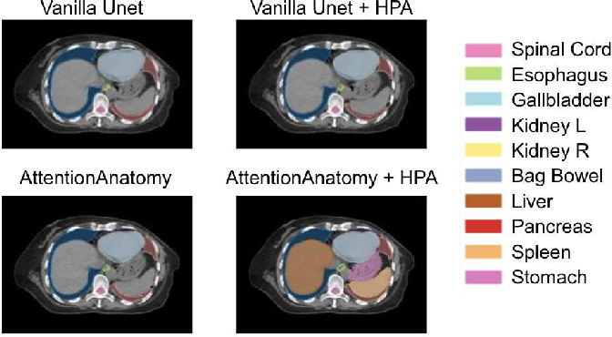 Figure 3 for AttentionAnatomy: A unified framework for whole-body organs at risk segmentation using multiple partially annotated datasets