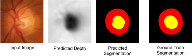 Figure 1 for Fully Convolutional Networks for Monocular Retinal Depth Estimation and Optic Disc-Cup Segmentation