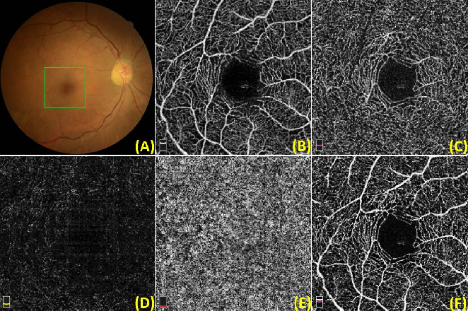Figure 1 for ROSE: A Retinal OCT-Angiography Vessel Segmentation Dataset and New Model