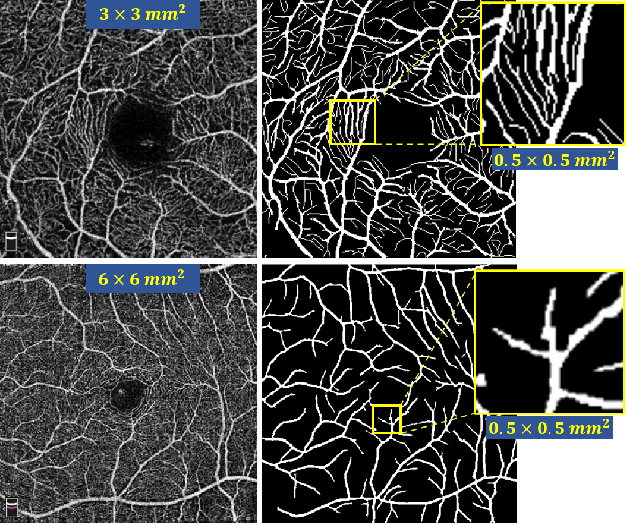 Figure 2 for ROSE: A Retinal OCT-Angiography Vessel Segmentation Dataset and New Model