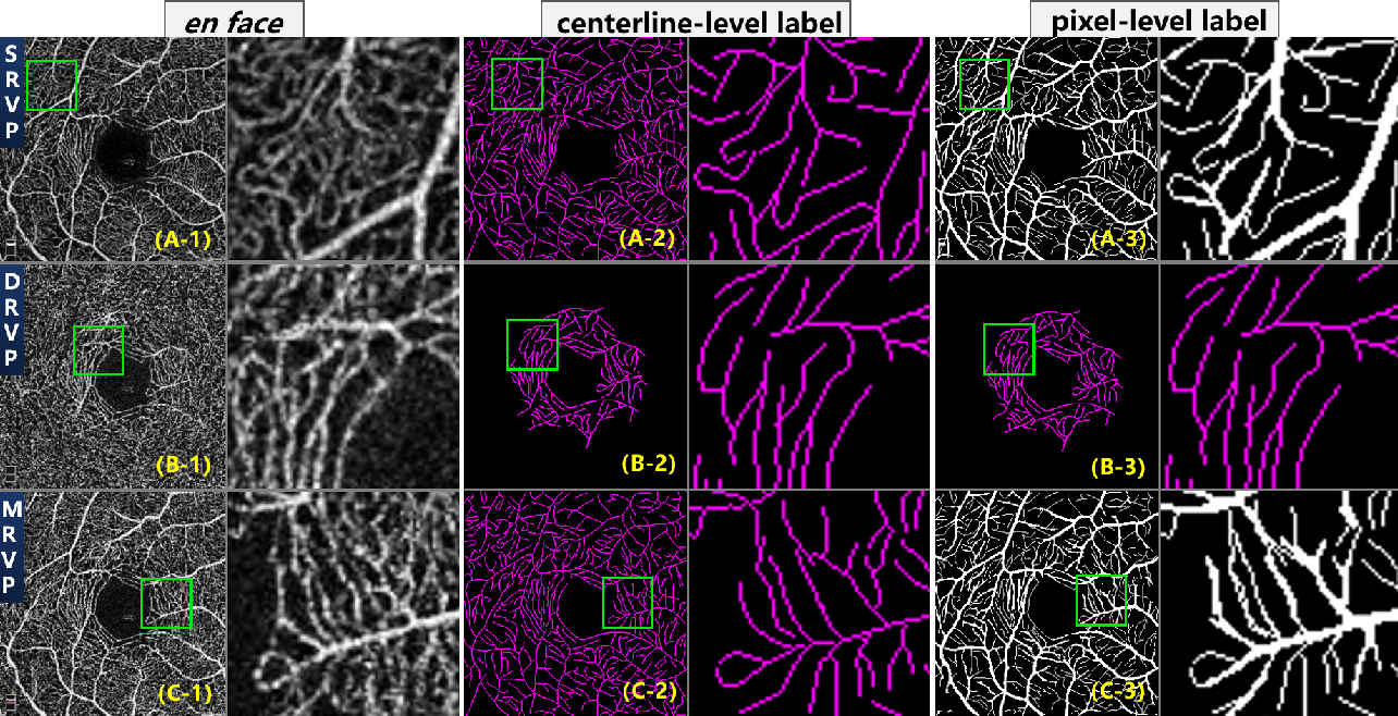 Figure 3 for ROSE: A Retinal OCT-Angiography Vessel Segmentation Dataset and New Model