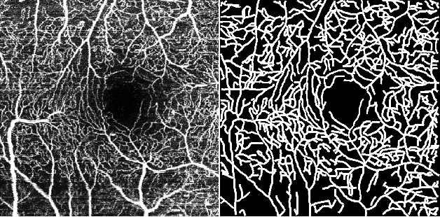 Figure 4 for ROSE: A Retinal OCT-Angiography Vessel Segmentation Dataset and New Model