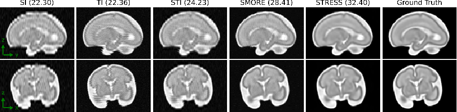 Figure 3 for STRESS: Super-Resolution for Dynamic Fetal MRI using Self-Supervised Learning