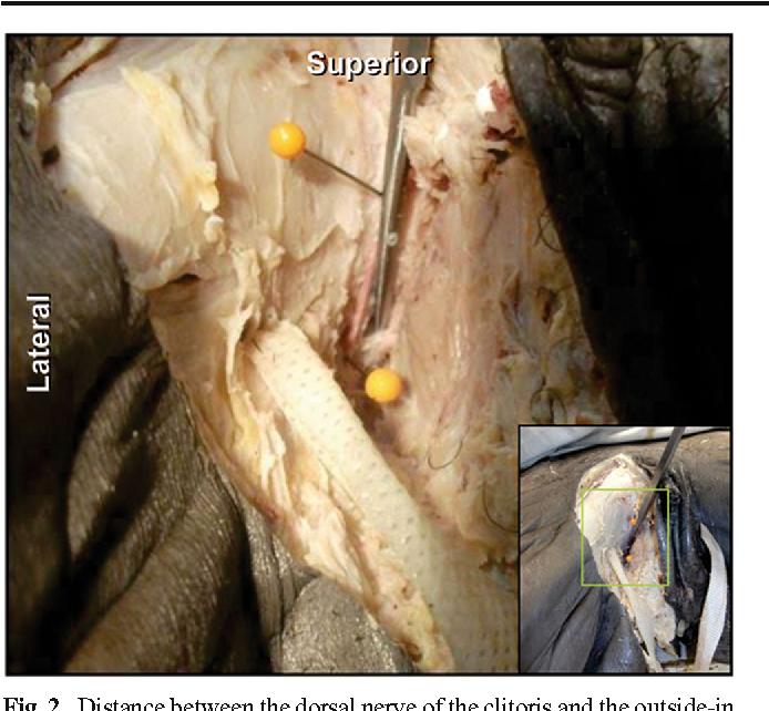 Clitoris dorsal nerve what phrase