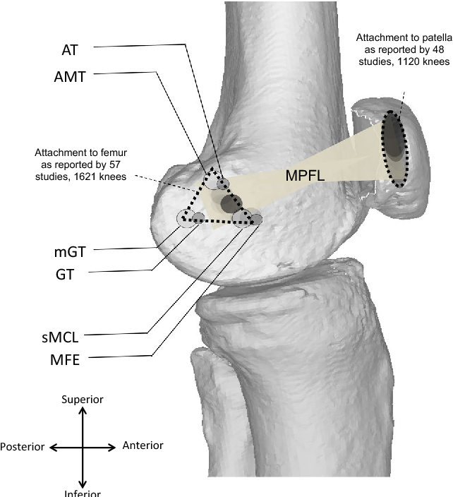 Origin And Insertion Of The Medial Patellofemoral Ligament A