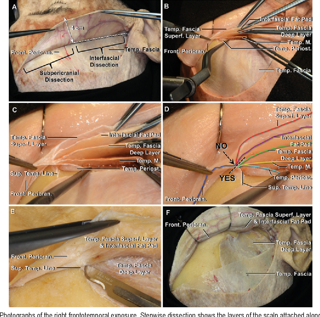 Preservation of the nerves to the frontalis muscle during pterional ...