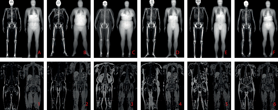 Figure 1 for Self-Supervised Multi-Modal Alignment for Whole Body Medical Imaging