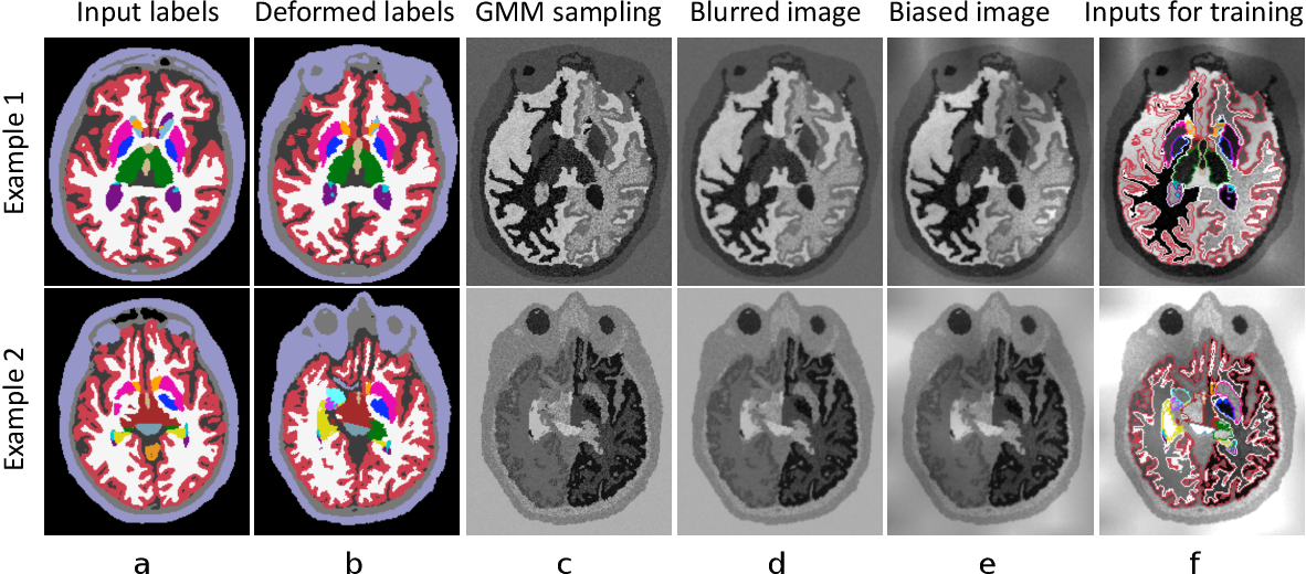 Figure 3 for A Learning Strategy for Contrast-agnostic MRI Segmentation