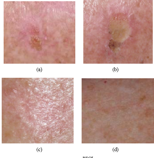 Figure 5 from Solasodine Glycosides: A Topical Therapy for Actinic