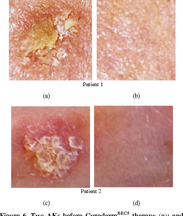 Figure 6 from Solasodine Glycosides: A Topical Therapy for Actinic