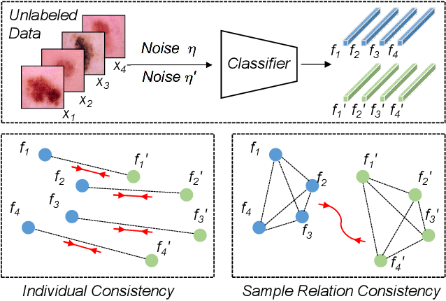 Figure 1 for Semi-supervised Medical Image Classification with Relation-driven Self-ensembling Model