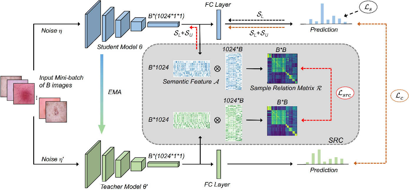 Figure 2 for Semi-supervised Medical Image Classification with Relation-driven Self-ensembling Model