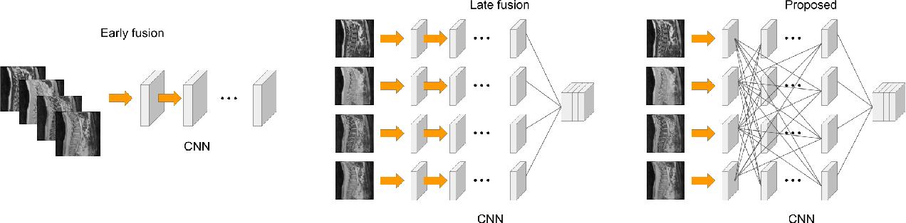 Figure 1 for IVD-Net: Intervertebral disc localization and segmentation in MRI with a multi-modal UNet