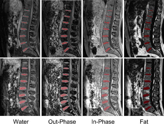 Figure 2 for IVD-Net: Intervertebral disc localization and segmentation in MRI with a multi-modal UNet