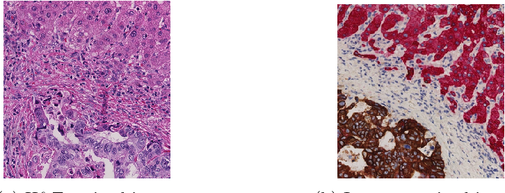 Figure 1 for GAN-based Virtual Re-Staining: A Promising Solution for Whole Slide Image Analysis