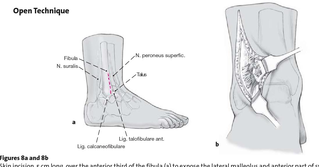 Figure 8 from Surgical Treatment of Maisonneuve Fractures - Semantic