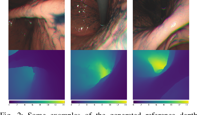 Figure 2 for Learning-Based Depth and Pose Estimation for Monocular Endoscope with Loss Generalization