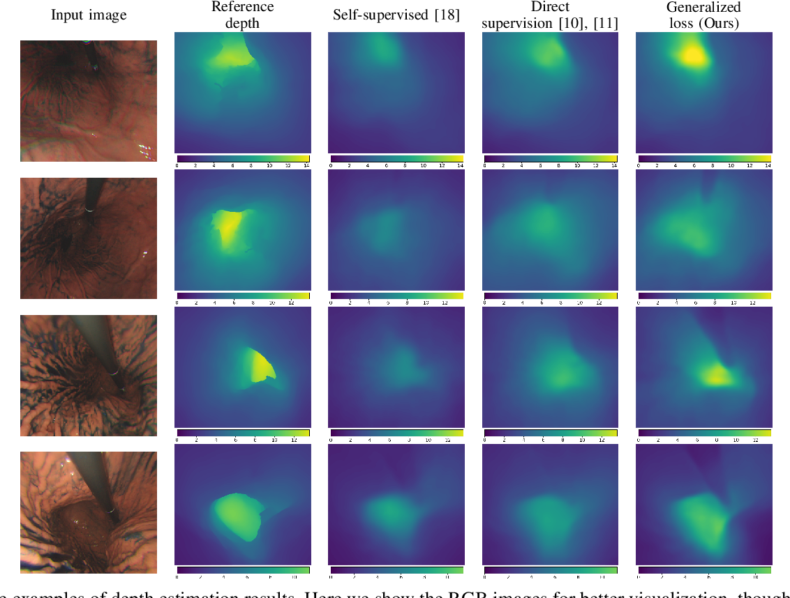 Figure 3 for Learning-Based Depth and Pose Estimation for Monocular Endoscope with Loss Generalization