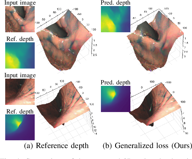 Figure 4 for Learning-Based Depth and Pose Estimation for Monocular Endoscope with Loss Generalization