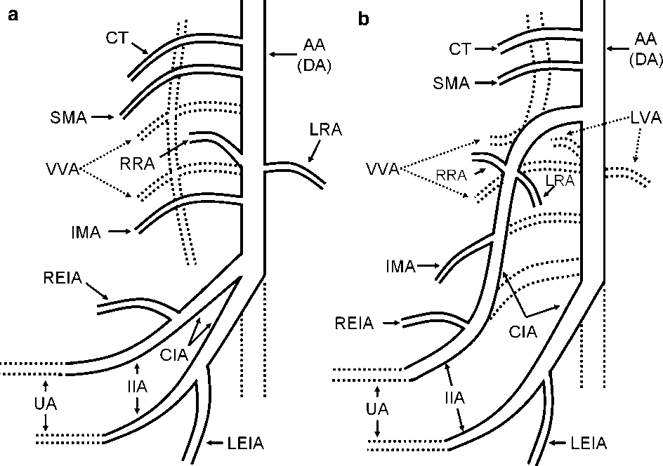 3 schematic diagram of artery embryologic mechanism in normal development  (a) and