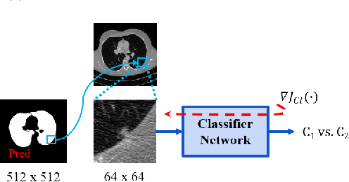 Figure 4 for Lung Segmentation and Nodule Detection in Computed Tomography Scan using a Convolutional Neural Network Trained Adversarially using Turing Test Loss