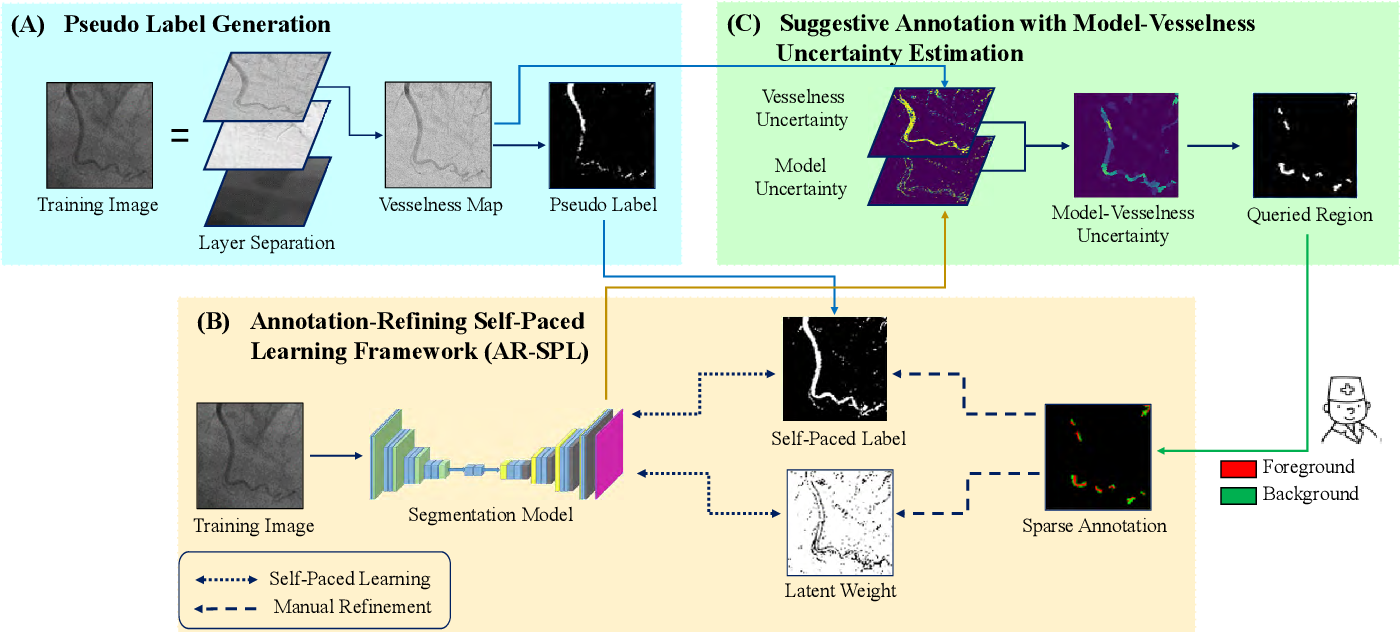 Figure 3 for Weakly Supervised Vessel Segmentation in X-ray Angiograms by Self-Paced Learning from Noisy Labels with Suggestive Annotation