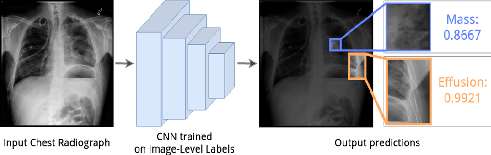 Figure 1 for Self-Guided Multiple Instance Learning for Weakly Supervised Disease Classification and Localization in Chest Radiographs
