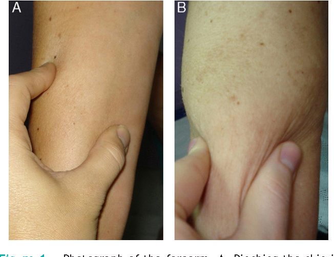 Figure 1 From Posttraumatic Eosinophilic Fasciitis Diagnostic