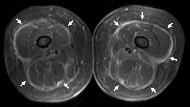 Figure 3 From Posttraumatic Eosinophilic Fasciitis Diagnostic