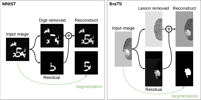Figure 1 for Boosting segmentation with weak supervision from image-to-image translation