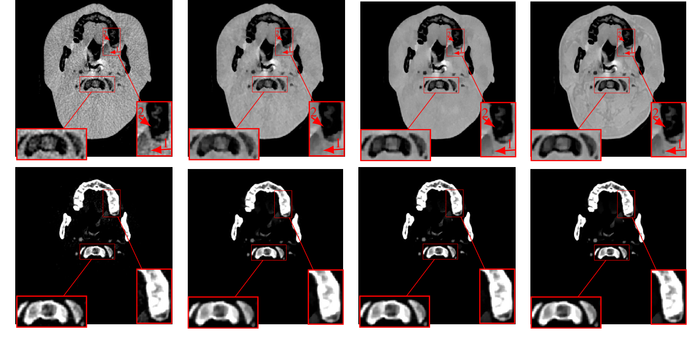 Figure 2 for DECT-MULTRA: Dual-Energy CT Image Decomposition With Learned Mixed Material Models and Efficient Clustering
