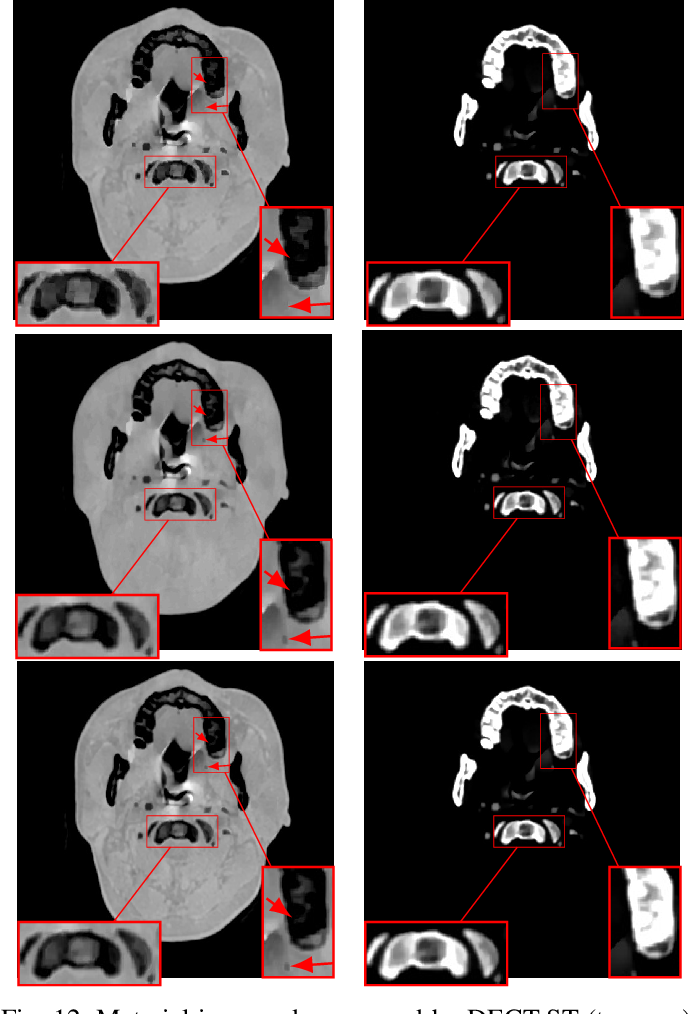 Figure 4 for DECT-MULTRA: Dual-Energy CT Image Decomposition With Learned Mixed Material Models and Efficient Clustering