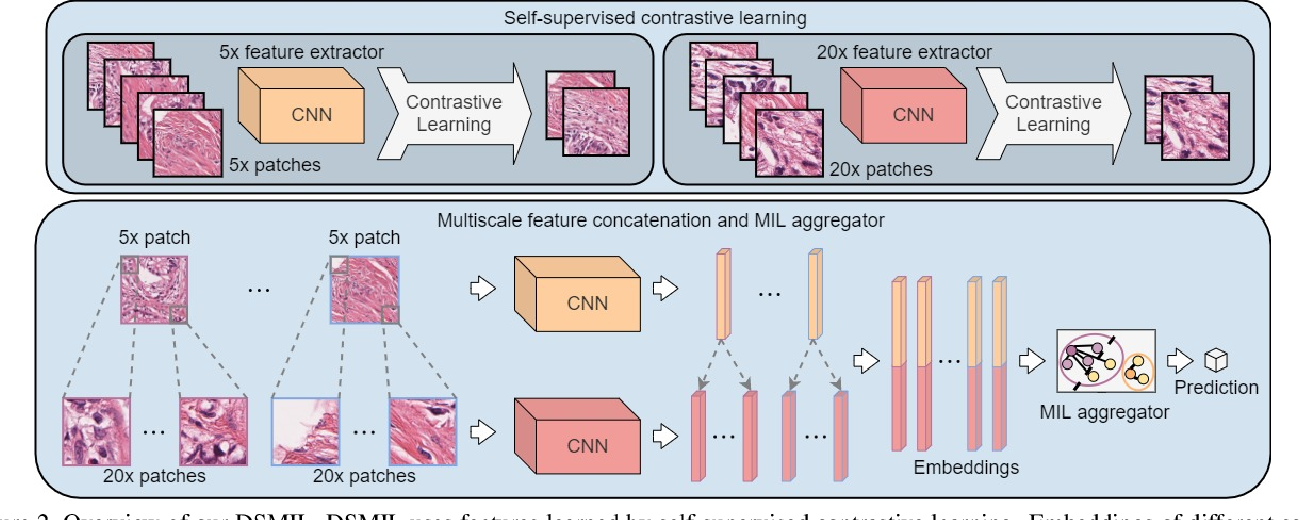 Figure 3 for Dual-stream Multiple Instance Learning Network for Whole Slide Image Classification with Self-supervised Contrastive Learning