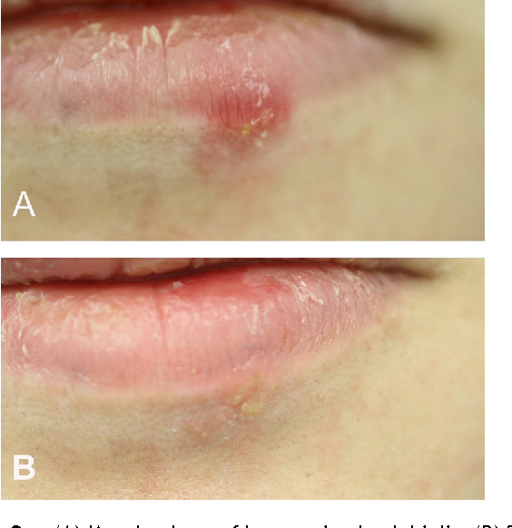 Treatment of herpes simplex labialis in macule and vesicle phases