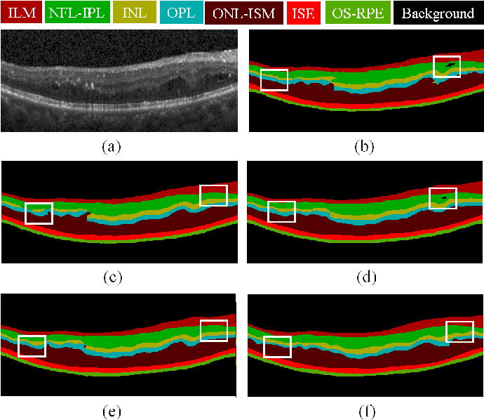 Figure 2 for MPG-Net: Multi-Prediction Guided Network for Segmentation of Retinal Layers in OCT Images