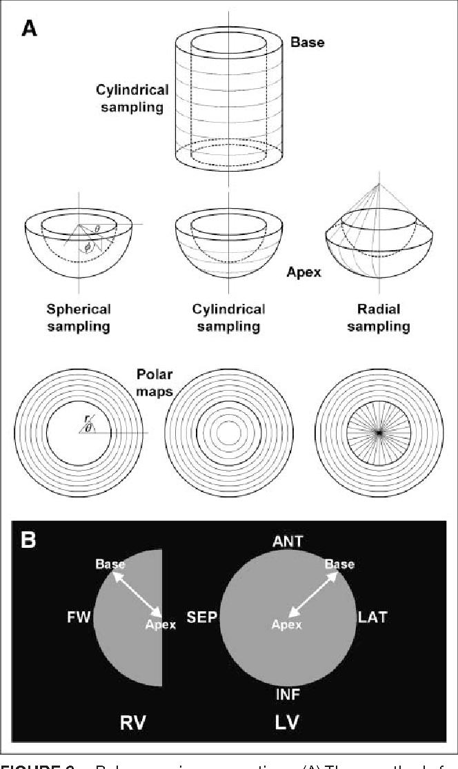 Figure 8 from Automated quantification of myocardial
