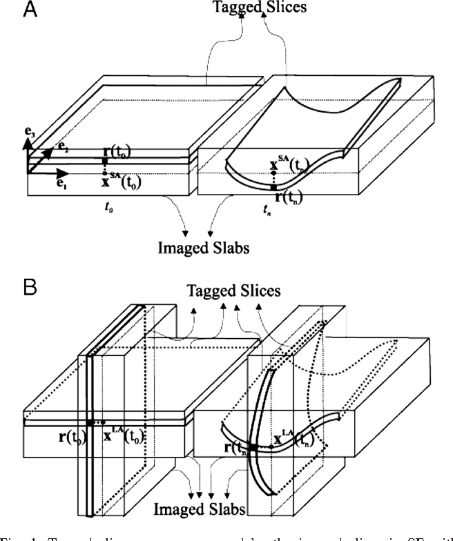 Fig. 1. Tagged slices are encompassed by the imaged slices in SF with CSPAMM. (A) Single imaged slice at time frames t0 and tn. (B) Two orthogonal imaged slices at the two time frames.