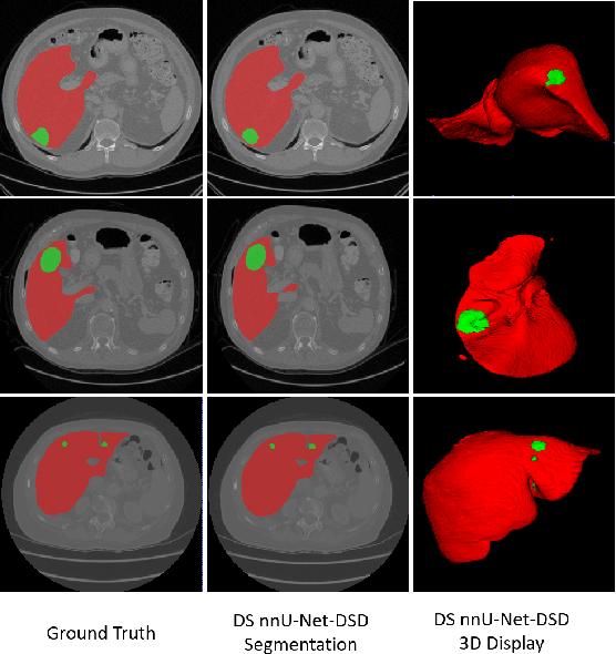 Figure 2 for Multi-Slice Dense-Sparse Learning for Efficient Liver and Tumor Segmentation