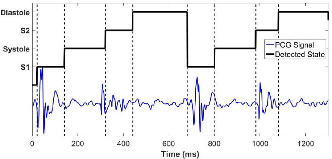 Figure 3 for Phonocardiographic Sensing using Deep Learning for Abnormal Heartbeat Detection