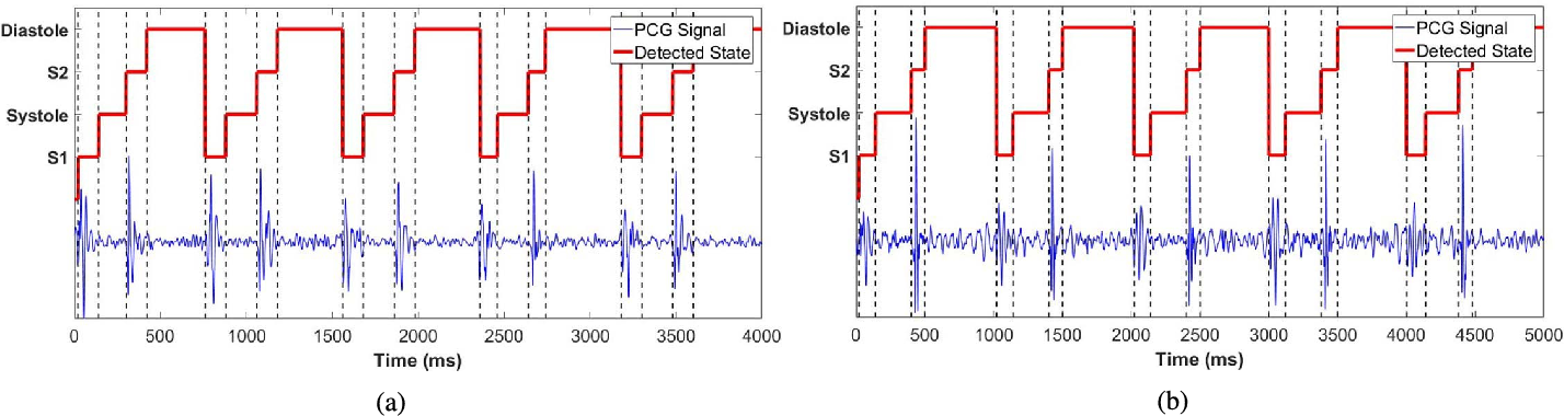 Figure 4 for Phonocardiographic Sensing using Deep Learning for Abnormal Heartbeat Detection