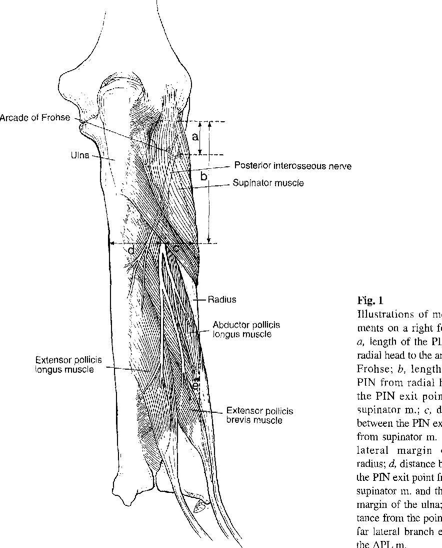 Anatomic basis of dorsoradial approach for radioulnar synostosis ...