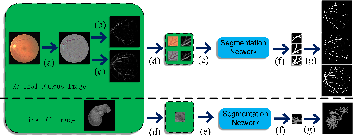 Figure 3 for Hierarchical Deep Network with Uncertainty-aware Semi-supervised Learning for Vessel Segmentation