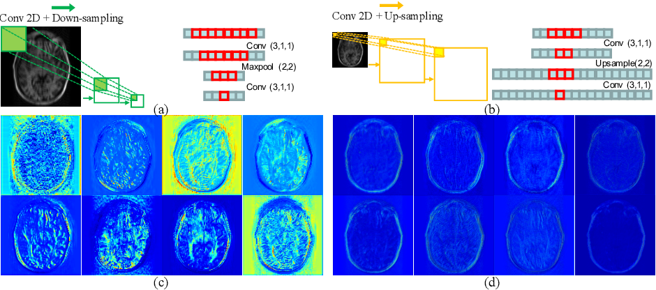 Figure 1 for Over-and-Under Complete Convolutional RNN for MRI Reconstruction