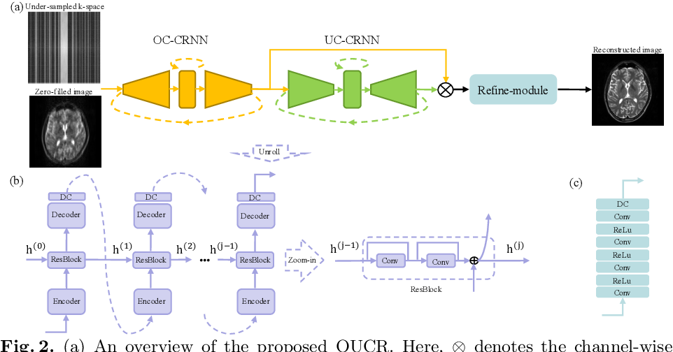 Figure 3 for Over-and-Under Complete Convolutional RNN for MRI Reconstruction